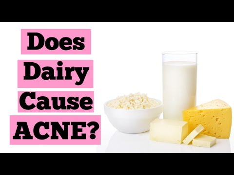can dairy cause acne