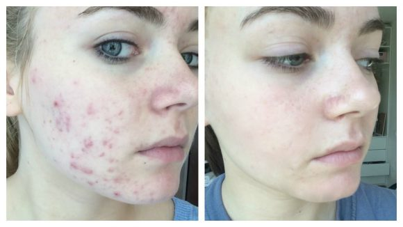 Naturally Remove Acne Scars Quickly