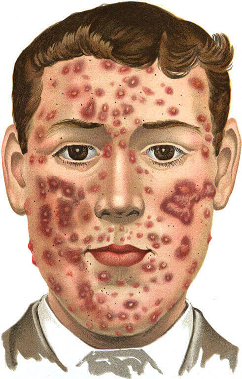 nothing is working for acne front viiew
